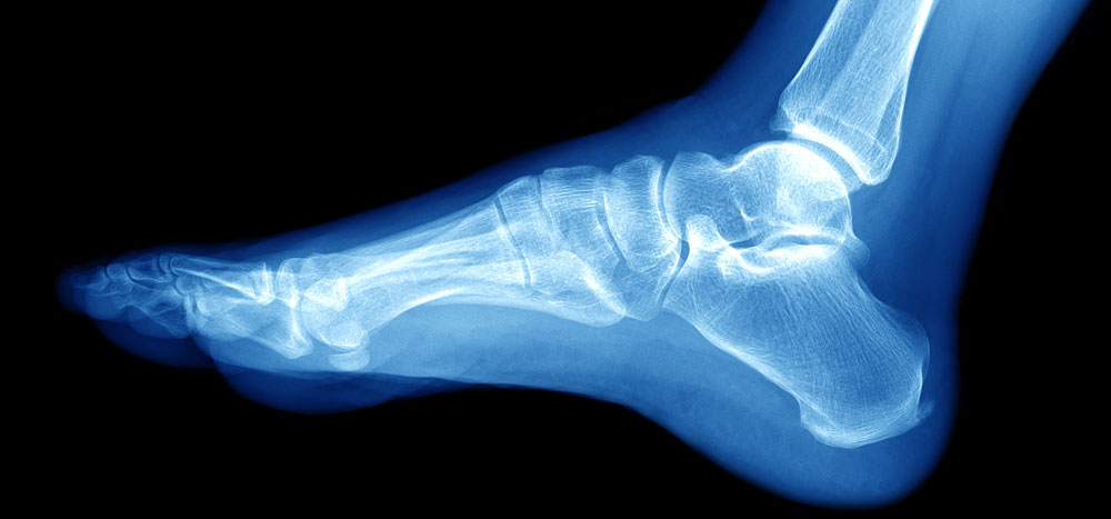 ankle fracture treatment boise