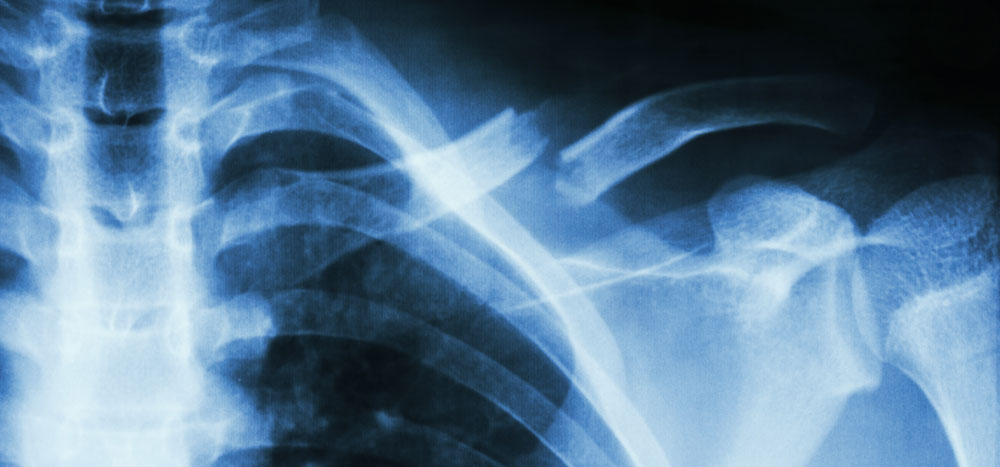 clavicle collar bone fracture care boise