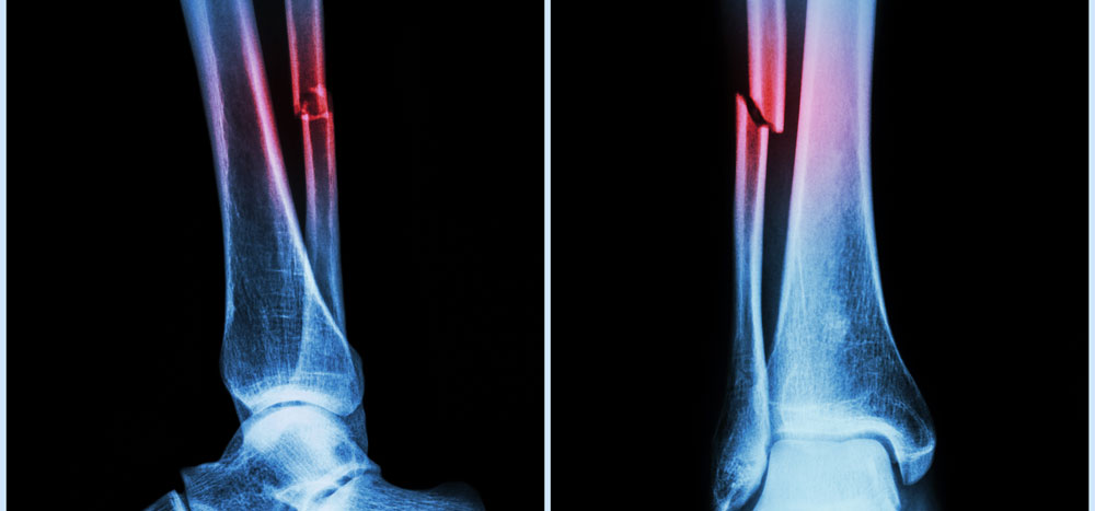 Fracture Care | Boise | Nampa | Meridian | West Idaho