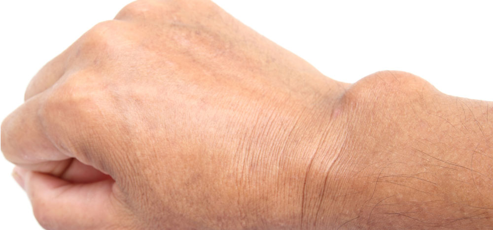 ganglion cyst wrist treatment boise