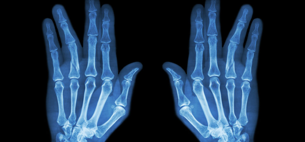 finger fracture broken finger treatment boise