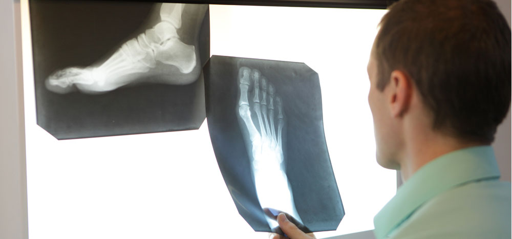 fracture care boise